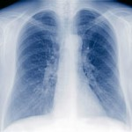 First Steps on Exercising to Improve Your Lung Capacity